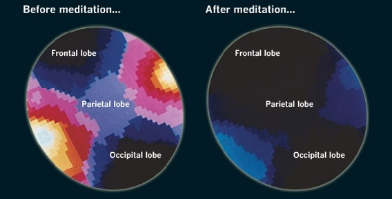 Effect of meditation on brain